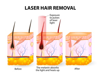 laser hair removal graphic